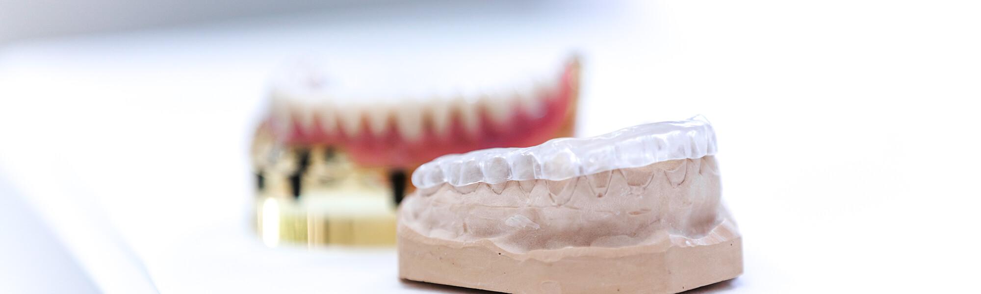 Zahnarzt Viersen - Implantologie - Dr. Guen