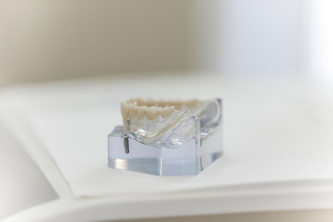 "Implantologie Viersen - Guen - ""Teeth in an hour"""